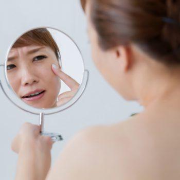悩み・症状別、食品選びのポイント|肌荒れ